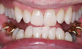 Tooth Whitening Example 1