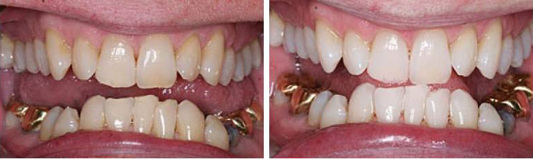 Tooth Whitening Example 2