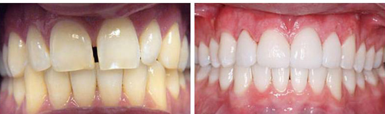 Porcelain Veneers Example 2