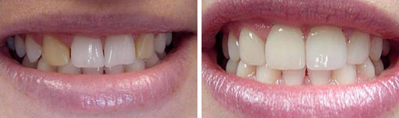 Porcelain Veneers Example 1