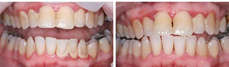 Periodontal Disease: Scaling and Root Planing
