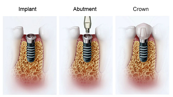 Dental Implants Cedar Rapids, IA