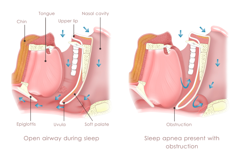 Oral Appliance for Sleep Apnea Cedar Rapids, IA